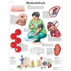 Lehrtafel - Bluthochdruck