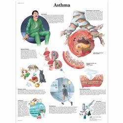 Lehrtafel - Asthma