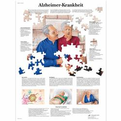 Lehrtafel - Alzheimer-Krankheit
