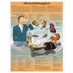 Lehrtafel - Alkoholabhängigkeit