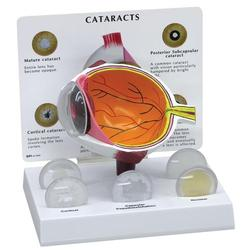 Auge Modell Katarakt (grauer Star)