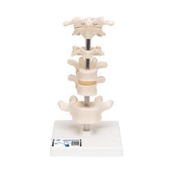 6 Wirbelmodelle auf Stativ - 3B Smart Anatomy